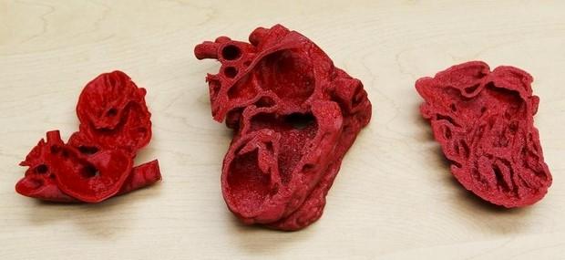 Roland Lian Cung Bawi's 3D heart